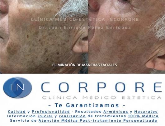 Juan Enrique Perez Enriquez - Galería de imágenes