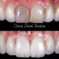 Clínica Dental Benalua