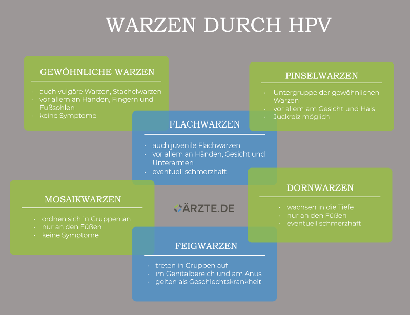 Warzenarten durch HPV