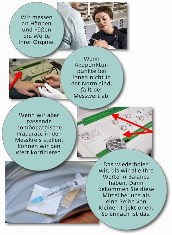 Elektroakupunktur Schaubild