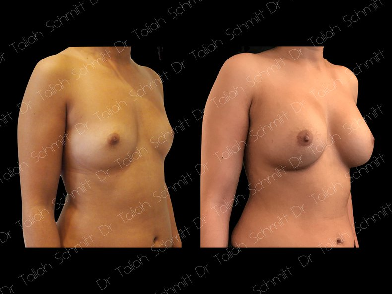 Before After Photo: Breast Augmentation Case 1