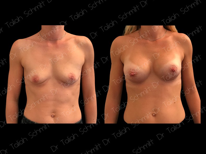 Before After Photo: Breast Augmentation Case 2