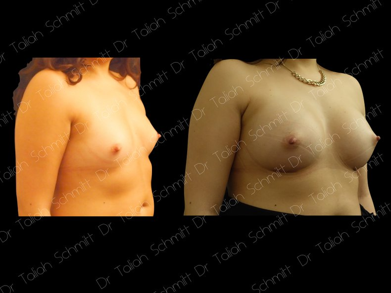 Before After Photo: Breast Augmentation Case 3
