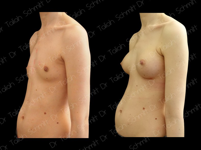 Before After Photo: Breast Augmentation Case 4