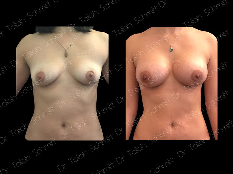 Before After Photo: Breast Augmentation Case 5