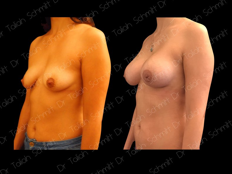 Before After Photo: Breast Augmentation Case 6