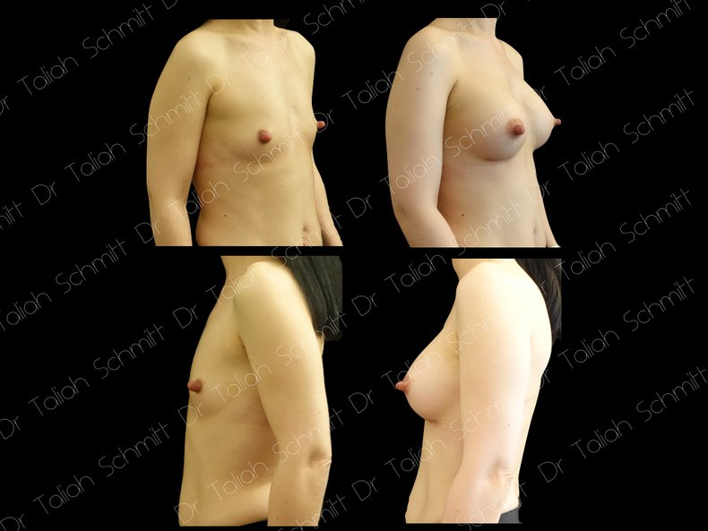 Before After Photo: Breast Augmentation Case 7