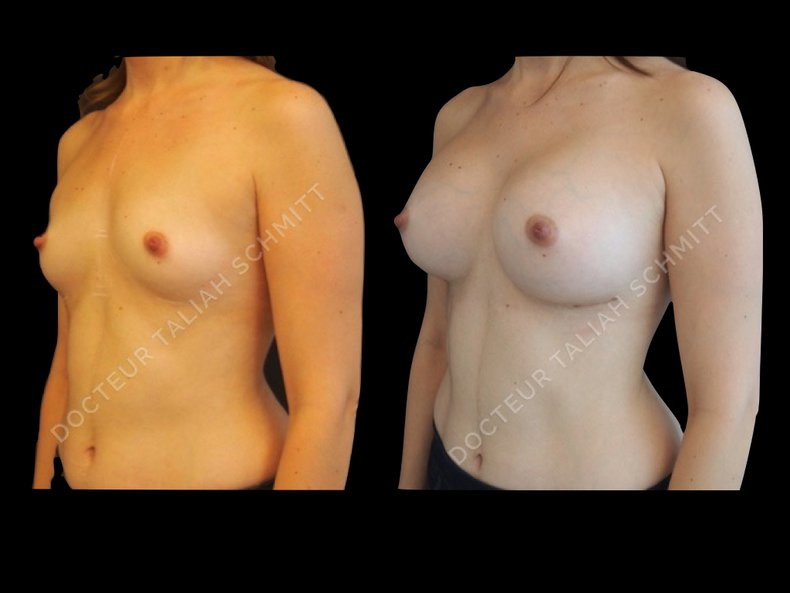 Before After Photo: Breast Augmentation Case 8