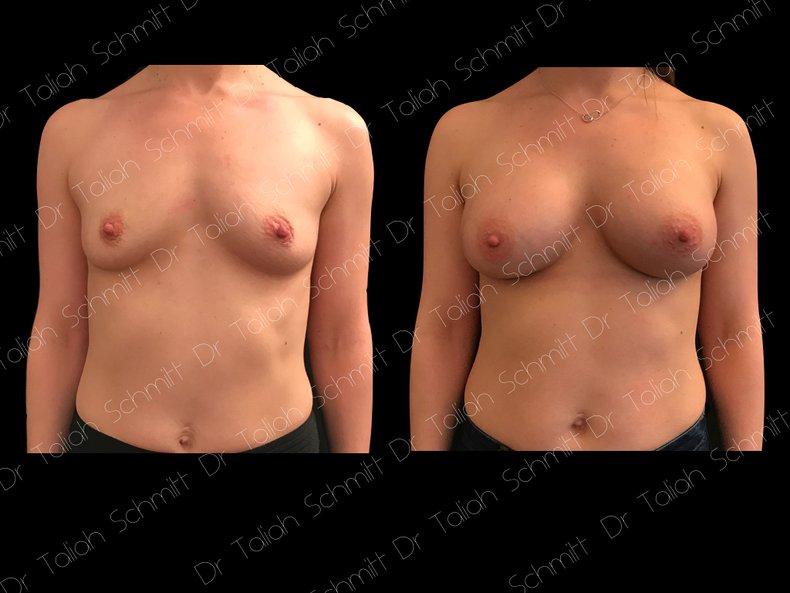 Before After Photo: Breast Augmentation Case 9