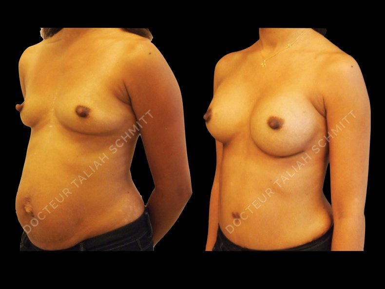 Before After Photo: Breast Augmentation Case 12