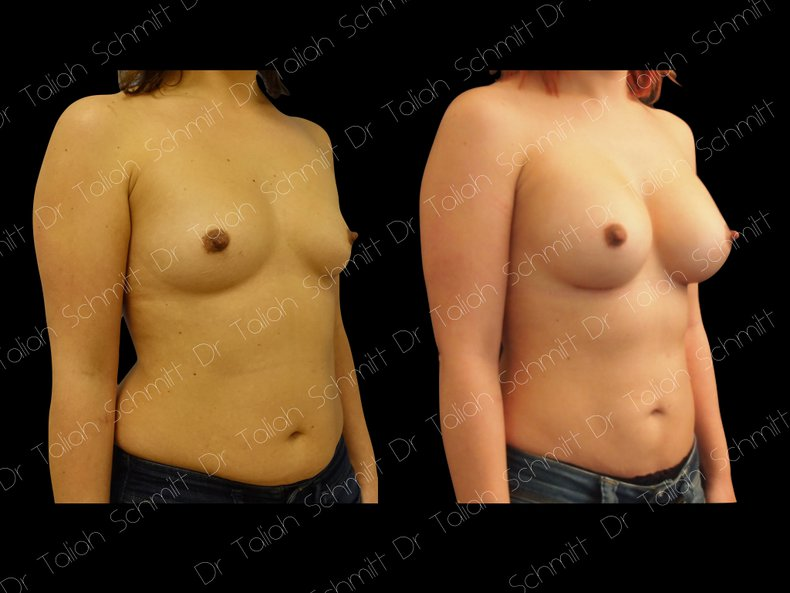 Before After Photo: Breast Augmentation Case 14