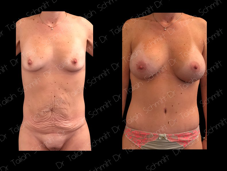 Before After Photo: Breast Augmentation Case 17