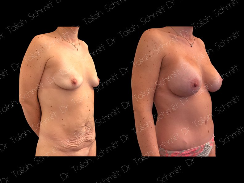 Before After Photo: Breast Augmentation Case 18