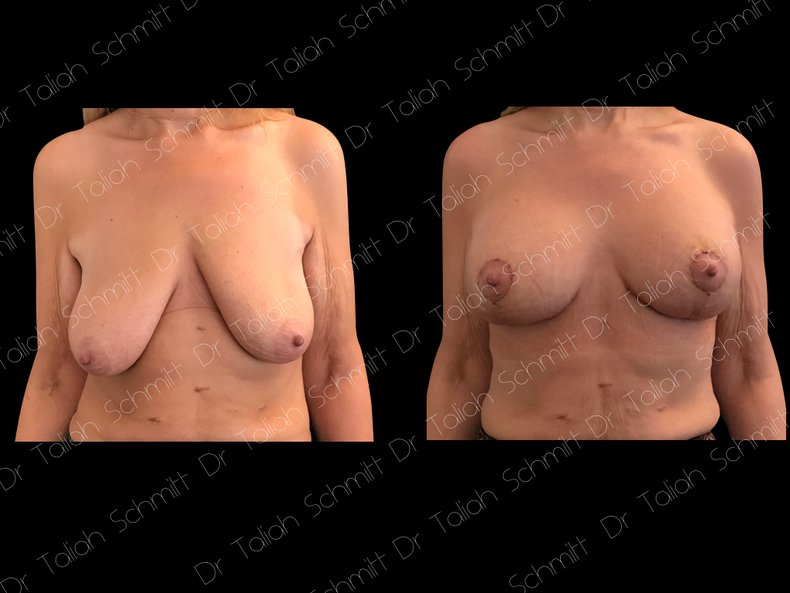 Before After Photo: Breast Lift Case 1