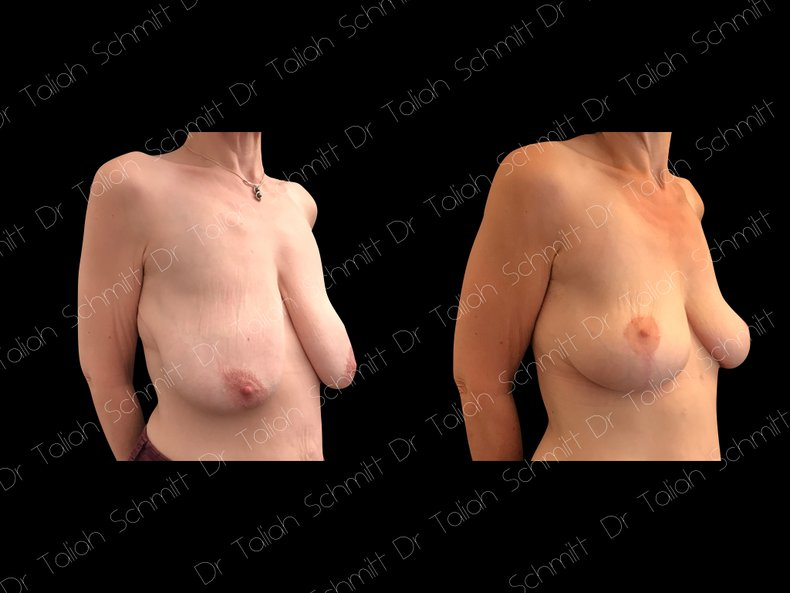 Before After Photo: Breast Lift Case 2