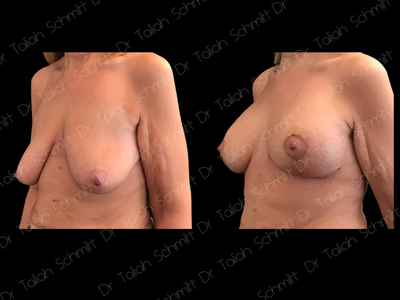 Before After Photo: Breast Lift Case 4