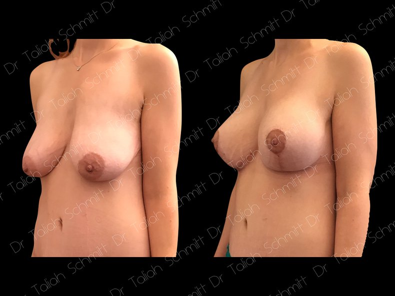 Before After Photo: Breast Lift Case 5