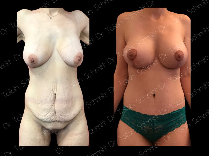 Before After Photo: Breast Lift Case 6