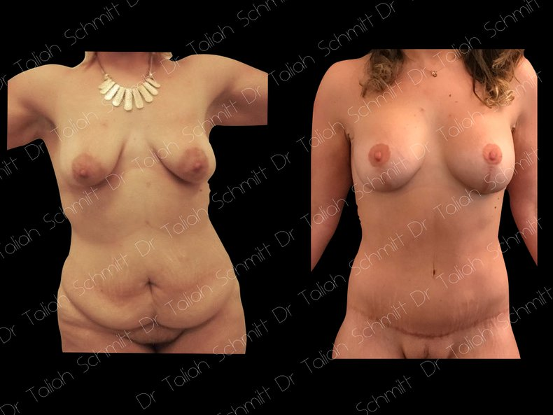 Before After Photo: Breast Lift Case 7