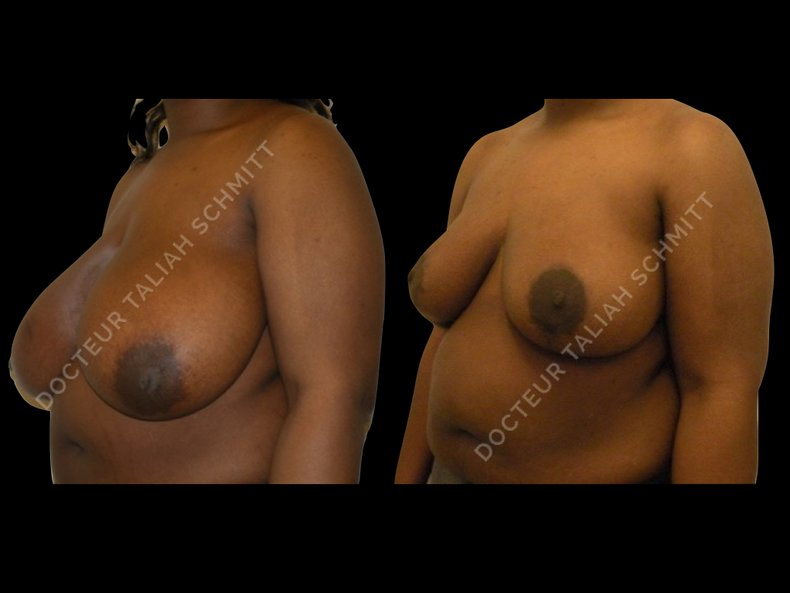 Before After Photo: Breast Reduction Case 1