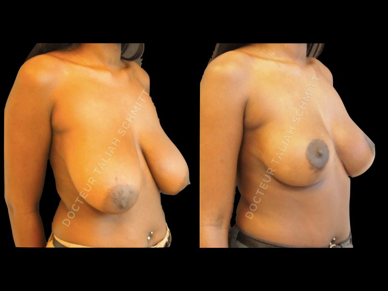 Before After Photo: Breast Reduction Case 2