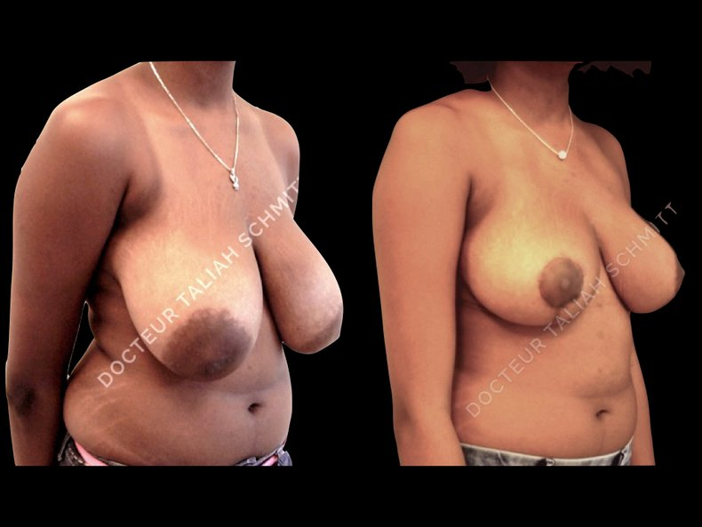 Before After Photo: Breast Reduction Case 3