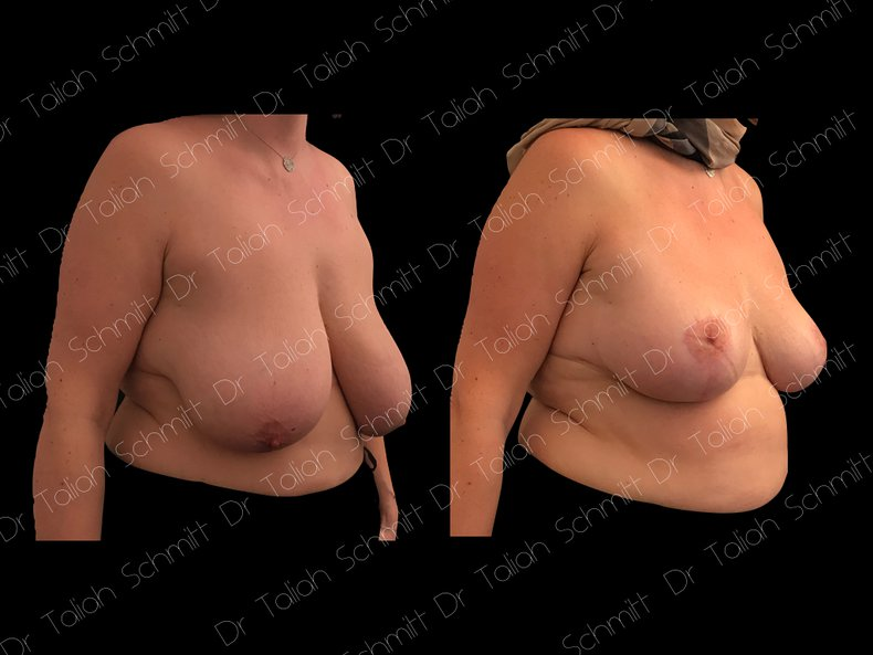Before After Photo: Breast Reduction Case 4