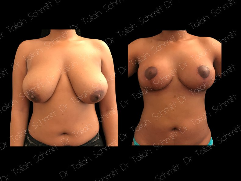 Before After Photo: Breast Reduction Case 5