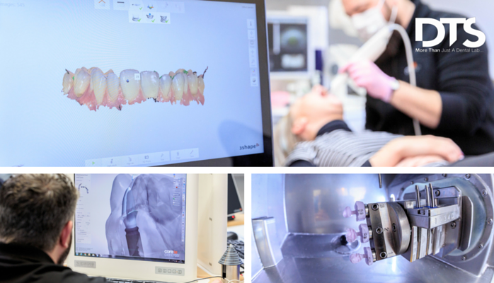 Working towards digital dentistry