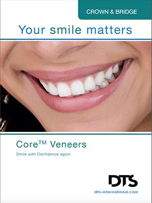Core Veneers