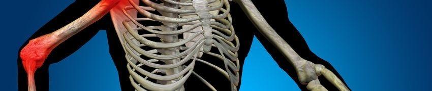 Treating Osteoporosis