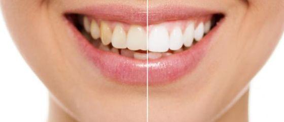 3 minuti per avere denti più bianchi con la curcuma