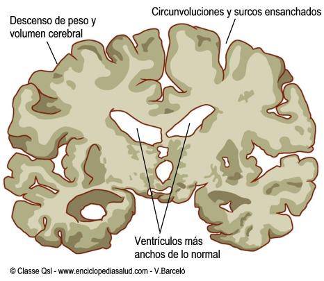 Corte vertical del cerebro con la enfermedad de alzheimer