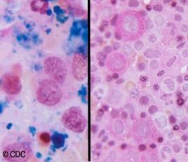 Medula osea sin y con anemia