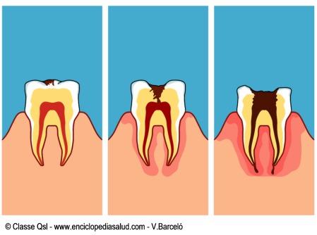 Formación de una caries dental