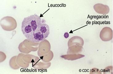 Celulas de la sangre: globulos rojos, leucocitos, plaquetas