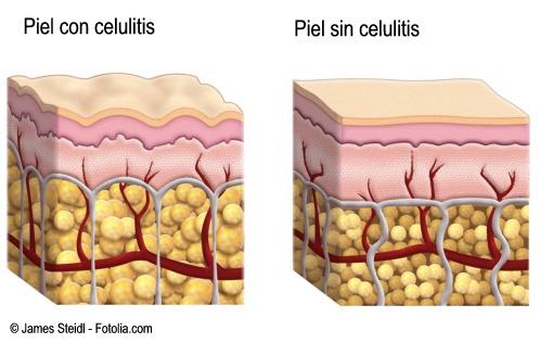 Dibujo de la piel con celulitis y sin celulitis