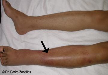 Celulitis, infeccion en la pierna