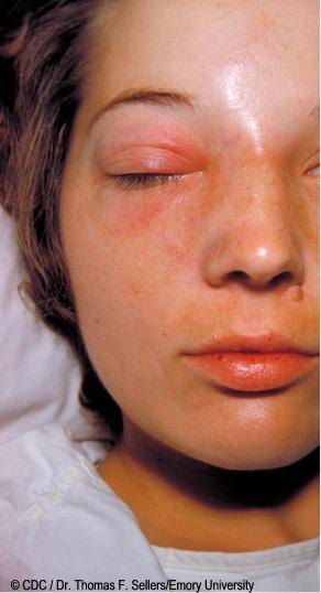 Celulitis, infeccion en la cara