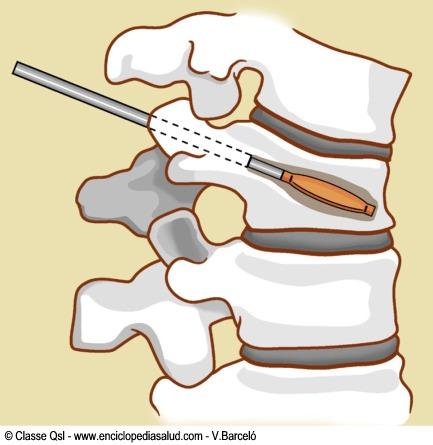 Cifoplastia para tratar fracturas en la columna vertebral