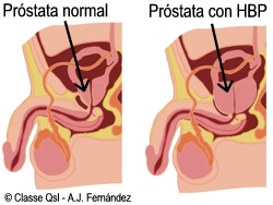 aumento del tamaño de la próstata
