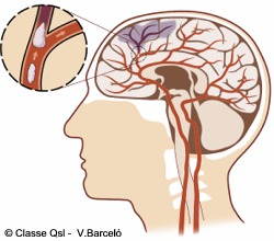 D accidentecerebrovascular