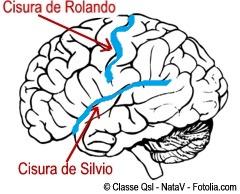 Enciclopedia Salud Definicion De Cisura