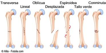 D fracturas