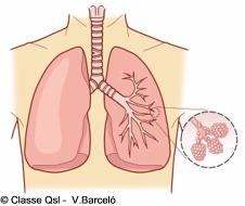 D pulmon