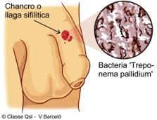 Que es la enfermedad de sifilis sintomas