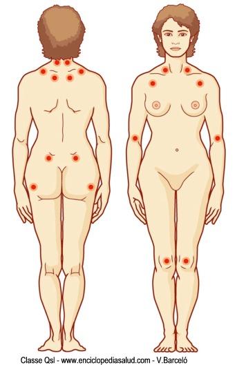 Zonas del cuerpo relacionadas con la fibromialgia