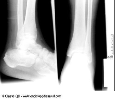 Radiografia de rayos X del talon del pie
