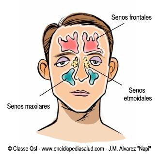 Sinusitis: senos de la cara