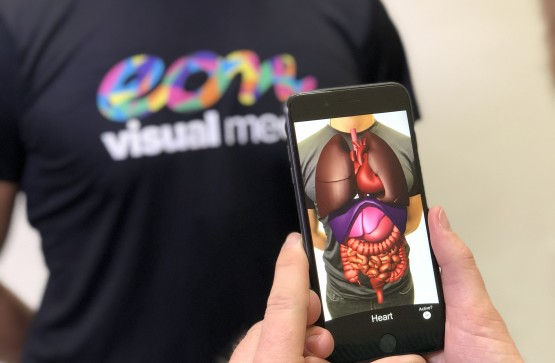 3 key benefits of AR in healthcare.